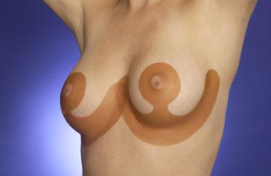 Feuilles de silicone Scarfix pour diminution mammaire