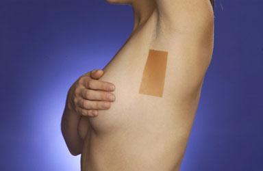 Feuilles de silicone Scarfix pour augmentation mammaire